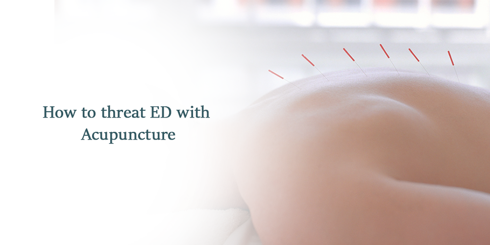 How To Treat ED With Acupuncture